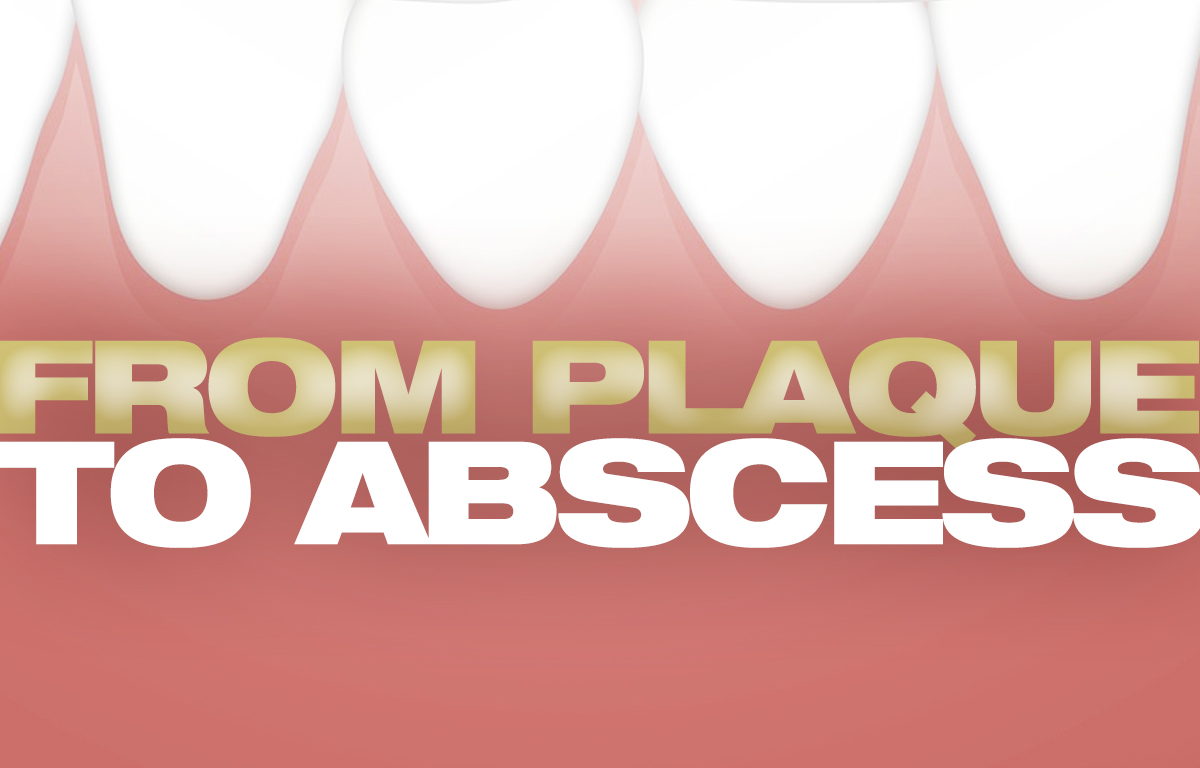 Plaque to abscess