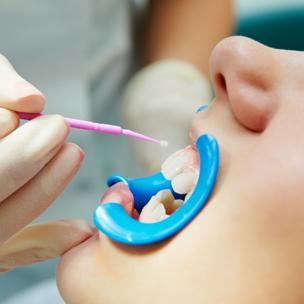 Fluoride Treatment At Back Bay Dentist Warshauer Santamaria Best